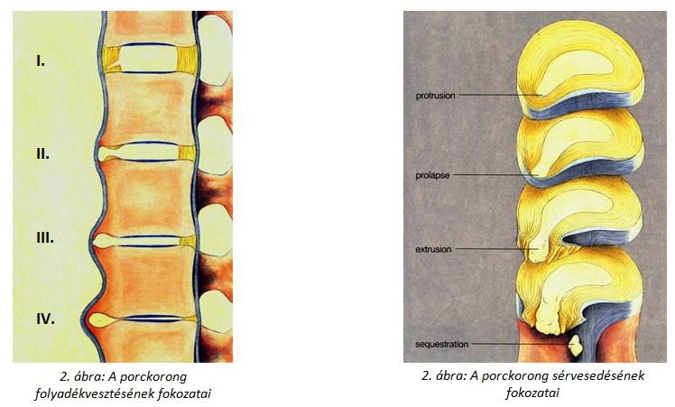 porckorong folyadékvesztése, porckorongsérv, gerincsérv, porckorong sérvesedése