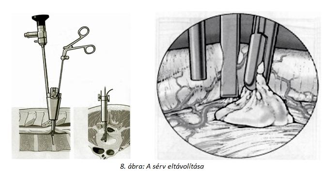 porckorongsérv eltávolítása, gerincsérv eltávolítása, porckorongsérv műtét, gerincsérv műtét