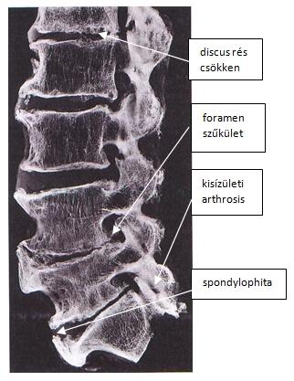 gerinc nélküli gerincvelő artrózis