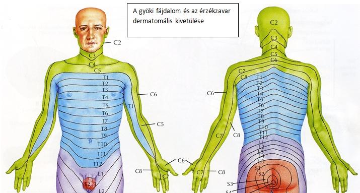 Nyaki sérv homályos látás Nyaki meszesedés 3 oka, 3 tünete, 3 kezelési módja [teljes tájékoztató]