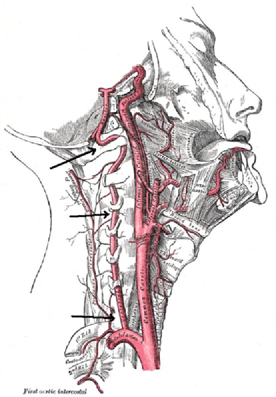 Nyaki spondylosis szédülés