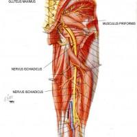 ízületi és izomfájdalom oszteoporózissal