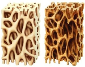 Balra a normális, jobbra az oszteoporotikus.