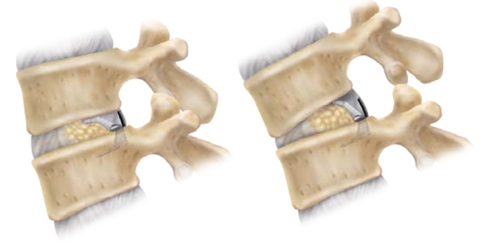 A Barricaid implantátum működés közben.