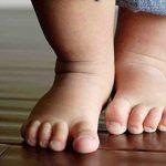 Leggyakoribb gyermekortopédiai problémák