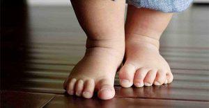 Fontos, hogy a lehető leghamarabb felfedezzük és kezeljük a gyermekortopédiai problémákat!